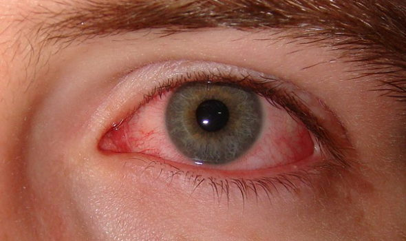 dry-eye-syndrome